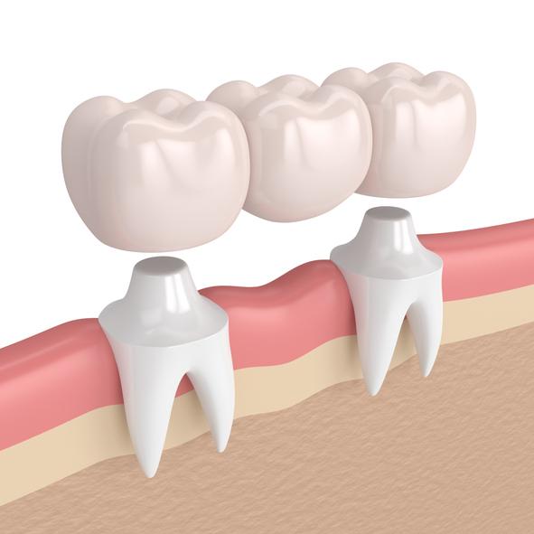 3d render of dental bridge