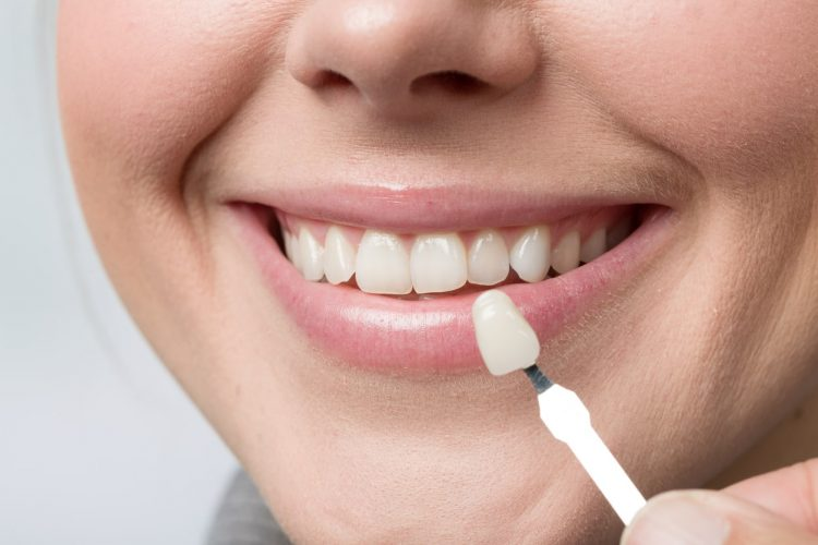 Picture of a lady holding on to a tooth veneer