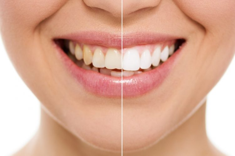 Comparison of teeth before and after teeth whitening treatment