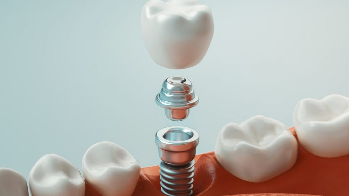 Picture of a dental crown with screw