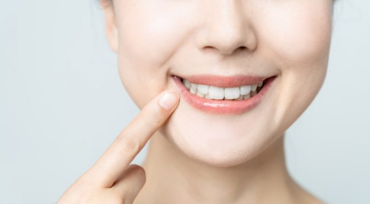 Picture a lady showing her white teeth
