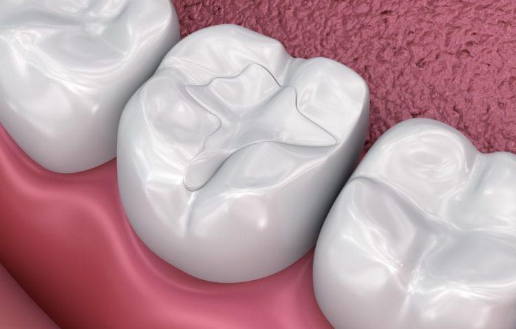Illustration of Dental Filling