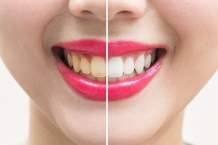 Yellow vs White Teeth Photo